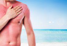 Cremes gegen Sonnenbrand
