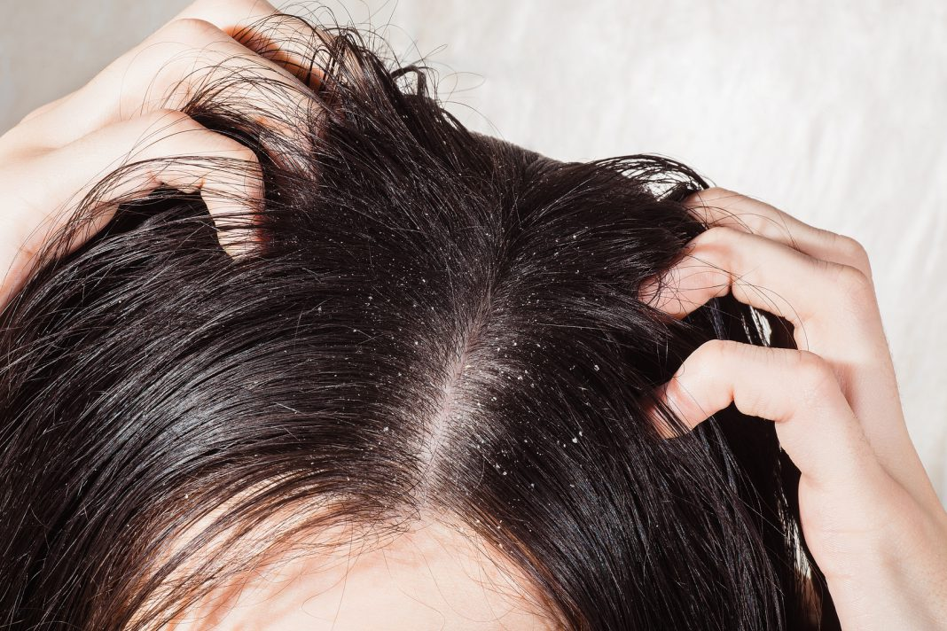Was Tun Bei Schuppen So Lässt Sich Fettige Und Trockene Kopfhaut