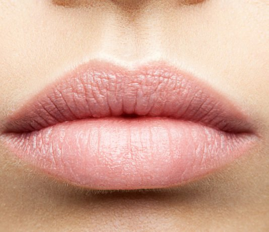 Was tun bei trockenen sröden Lippen